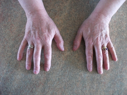 Bernies hands