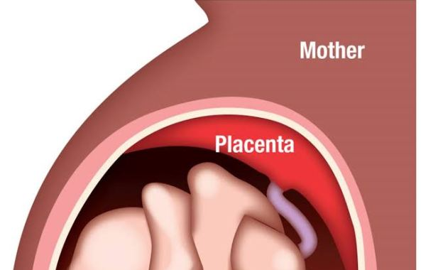 Benefits and Healthy Ways of  Eating  Placenta