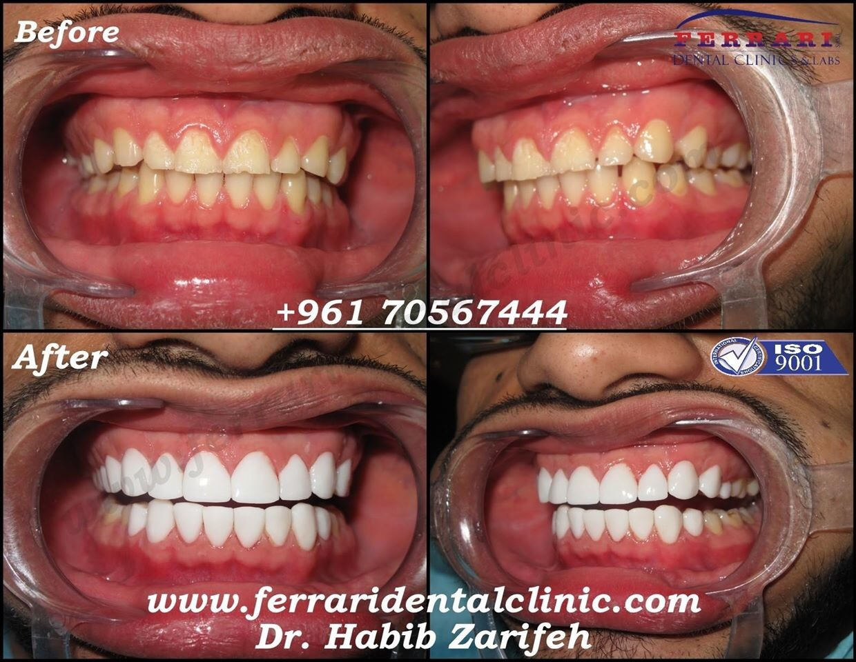 Visit Dental Clinic For Teeth Whitening Or Dental Implants The Perfect Hollywood Smile In Lebanon Dr Zarifeh