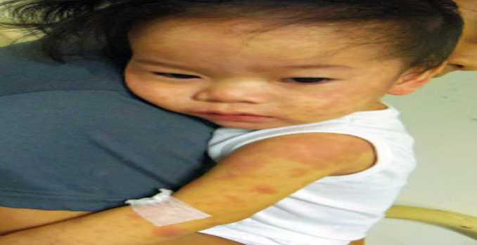 how much is measles vaccine in the philippines