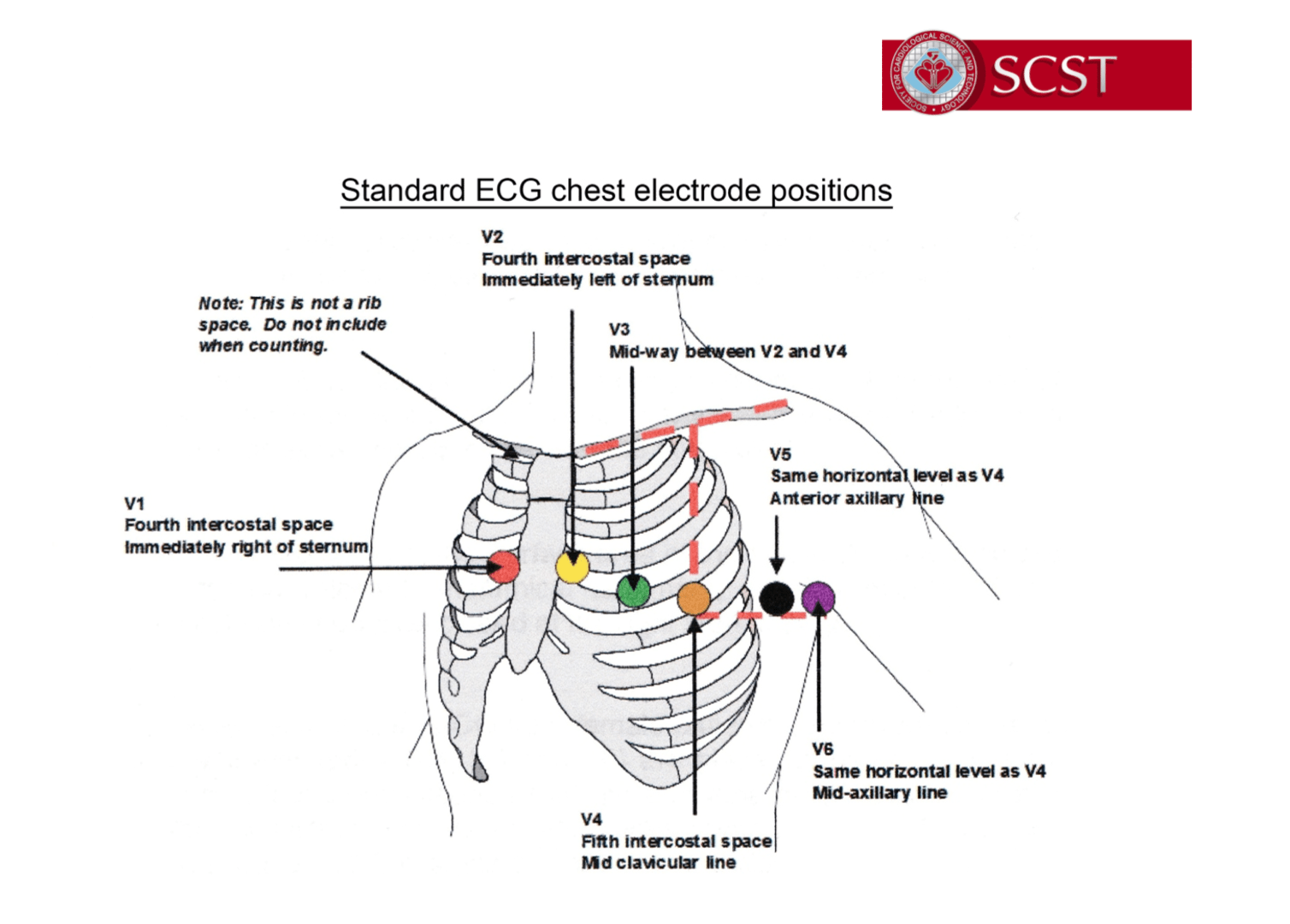How Is Your Ecg Electrode Placement The Student