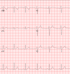 the normal ecg will display these characteristics  [ 1920 x 994 Pixel ]