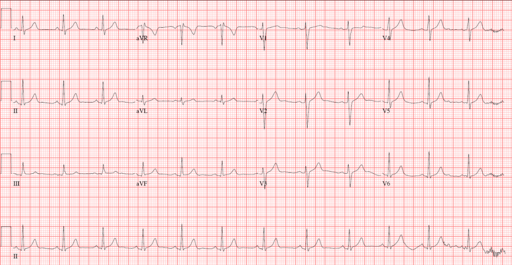 medium resolution of the normal ecg will display these characteristics