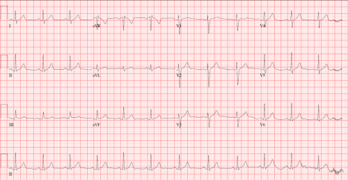 small resolution of the normal ecg will display these characteristics