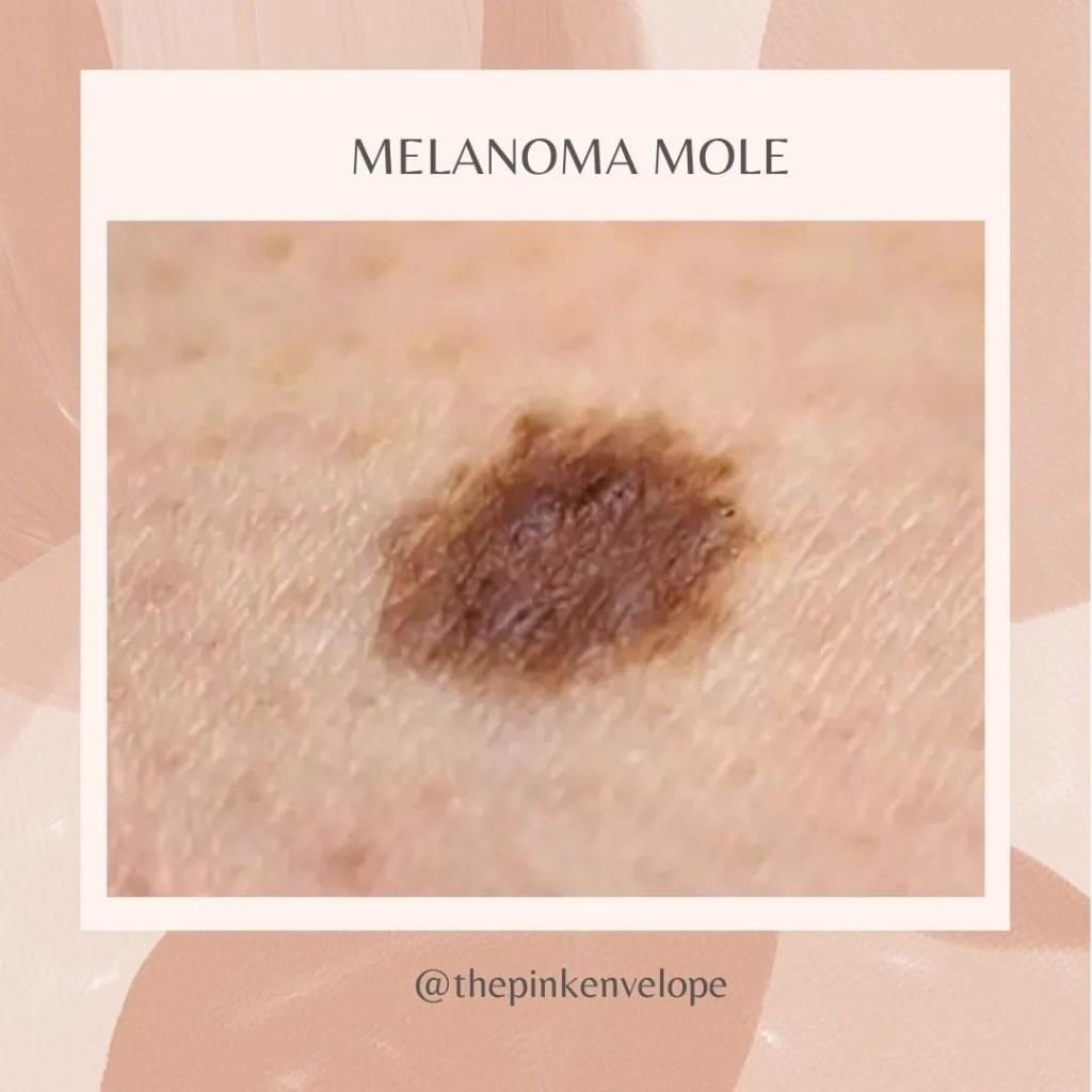 ABCDE of Melanoma Mole