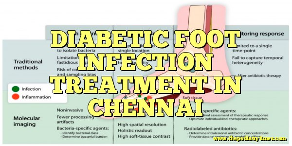 diabetic foot infection treatment in chennai
