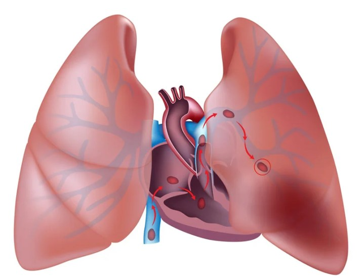 An undetected embolism can travel to the lung — a condition that is often fatal. Photo courtesy of Shutterstock.