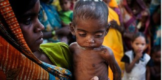 Chronic malnutrition: India currently has the highest proportion of undernourished individuals in South Asia