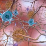 """The Dementia """"Epidemic"""": Examining Illness Metaphors in a Time of Pandemic"""