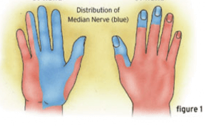 carpal tunnel median nerve distribution