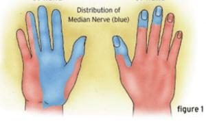 carpal tunnel median nerve distribution