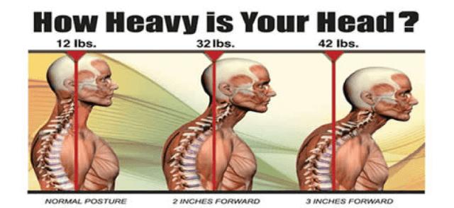 upper cross syndrome heavy head