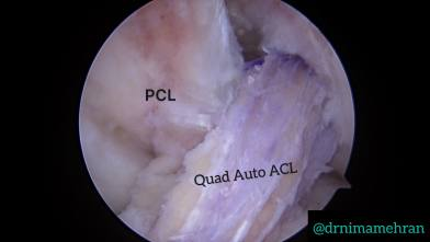 Quadriceps ACL Autograft What is the ACL