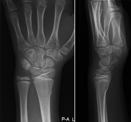 distal radius fracture the prehab guys