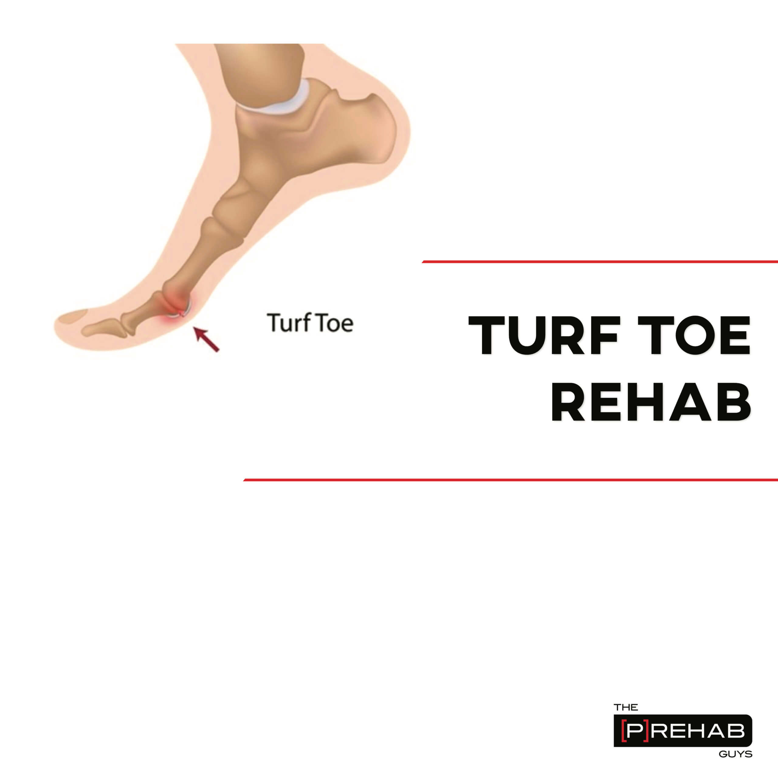 turf toe workout the prehab guys