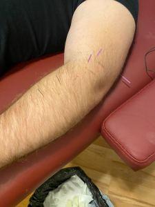 lateral epicondylitis dry needling prehab guys