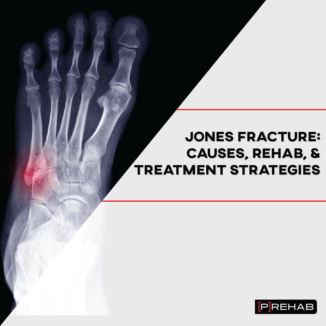 Jones fracture exercises the prehab guys