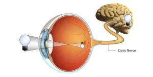 optic nerve the prehab guys