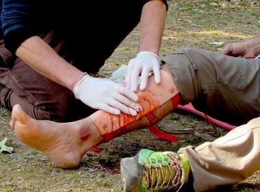 "At The Prepper Journal we often post about learning first aid, that you and those around you when a injury occurs are the real ""first responders"" to any incident and that you and they can be the difference between life and death while you wait for trained medical responders."