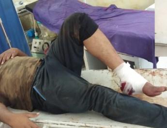 अंतर्राज्य्यीय ईनामी बदमाश इमरान नूहं पुलिस से मुठभेड़ में गिरफ्तार , पैर में लगी गोली