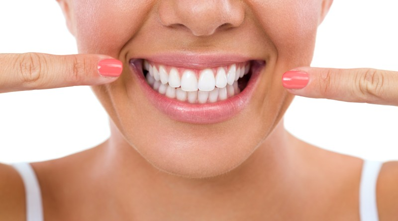 Woman showing her perfect straight white teeth. Smile