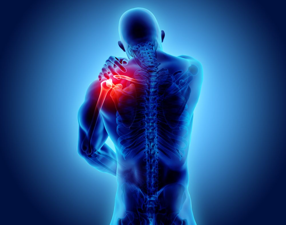 All patients saw a sustained benefit throughout 12 months for fat injections in shoulder