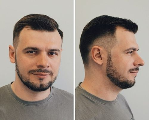 #1: Short Combover With Temple Fade. Fade Haircut For Men With Receding  Hairline