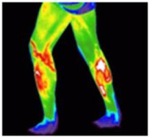 lower body thermography scan image