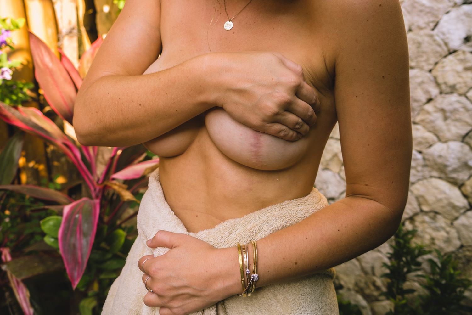 intimacy after double mastectomy surgery