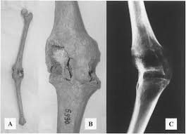 Bone Pathology: Fused Joints