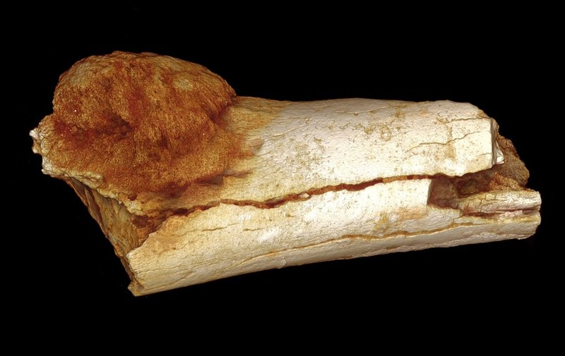 Scientists using a high-resolution X-ray technique found that this bone belonging to a hominin, an ancient, extinct relative of modern humans, has a malignant tumor. Patrick Randolph-Quinney (UCLan)