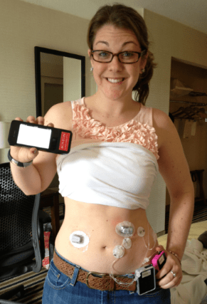 Turning Diabetes Over to the Bionic Pancreas