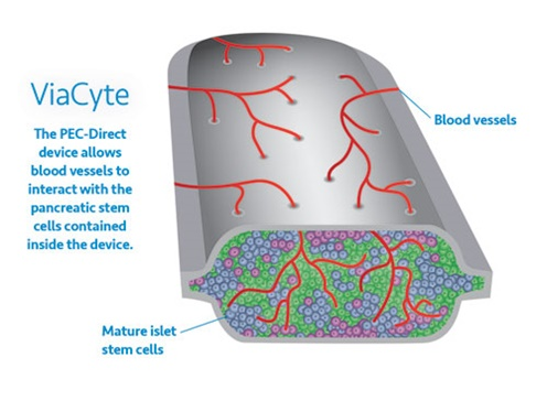 Savvy Updates, 7/5/21: Nano Tech & Microneedle Patches, Walmart's ReliOn Novolog ($72/bottle!), Bijels, Islet Transplant News, Symlin & Insulin,