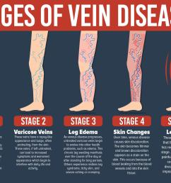 varicose veins simple explanations answers from the  [ 1898 x 1400 Pixel ]