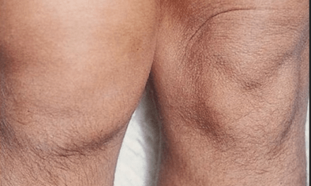 SGEM#39: Weak in the Knees (Diagnosis of Septic Joint)