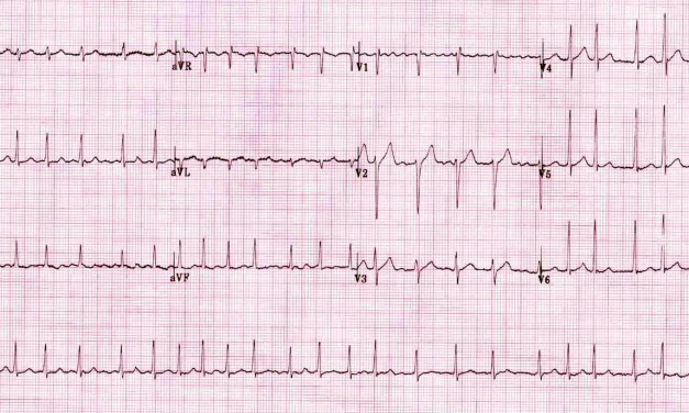 SGEM#133: Just Beat It (Atrial Fibrillation) with Diltiazem or Metoprolol?