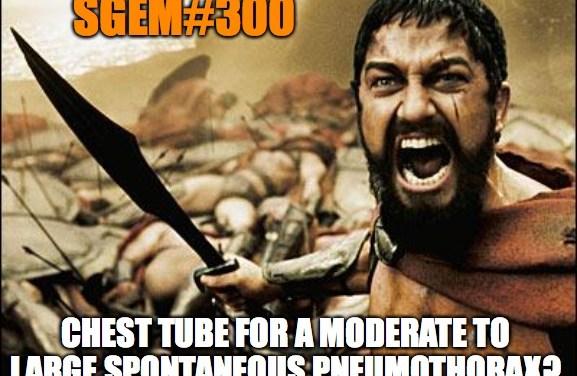 SGEM Memes #300