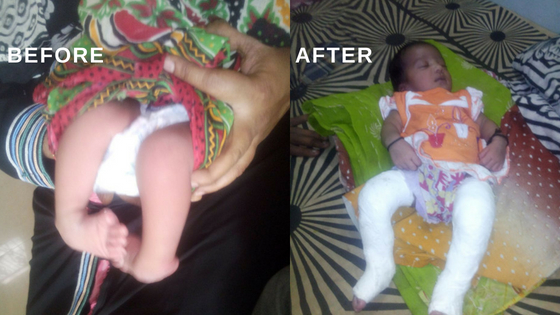 Leg operation of a girl child funded by Khadiman-e-Solapur