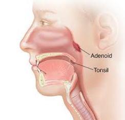 Adenoid
