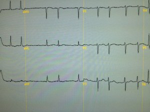 ECG showing atrial fibrillation