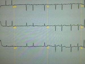 ECG showing atrial fibrillation
