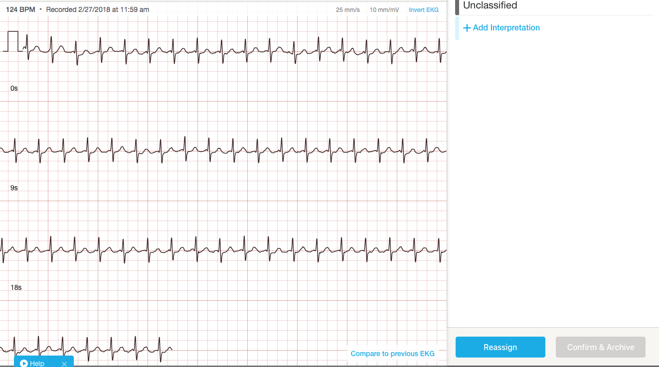AliveCor | The Skeptical Cardiologist