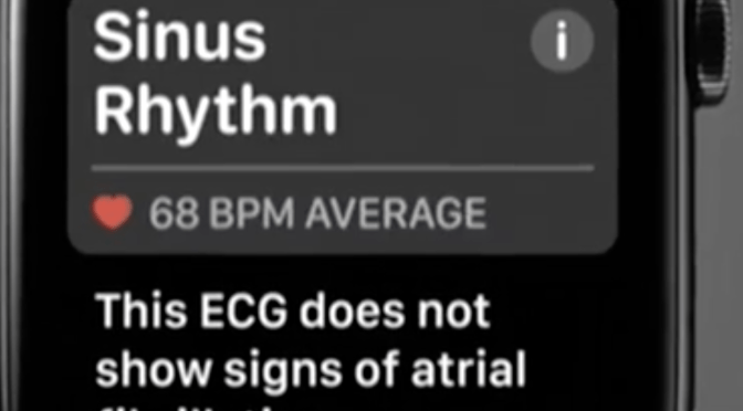 New Study Confirms Poor Apple Watch ECG App Sensitivity For Atrial Fibrillation