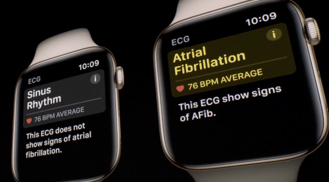 "The New Apple Watch 4: Cardiac Accuracy Unknown, ""Game-Changing"" Benefits Overblown"