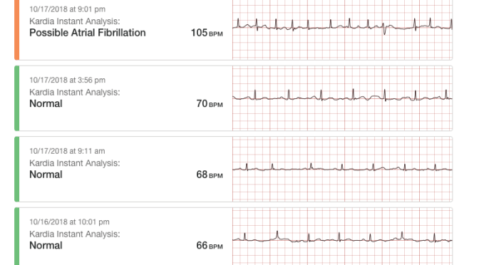 AliveCor's Mobile ECG With Kardia Pro Is Eliminating Any Need For Short or Long Term Cadiac Monitors For Most of My Afib patients: A Tale of Four Cardioversions