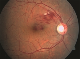"Ilene Has High Cholesterol With A ""Wonderful Ratio"" And A Branch Retinal Vein Occlusion: Should She Take A Statin?"