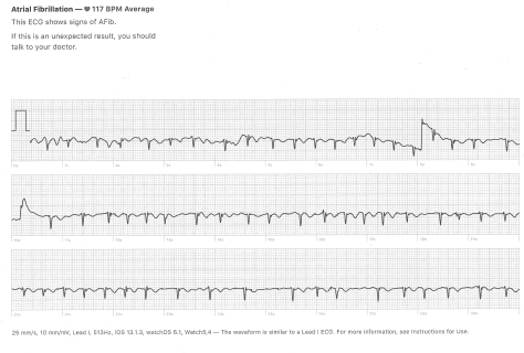 CL-150-AFIB-AW4.png