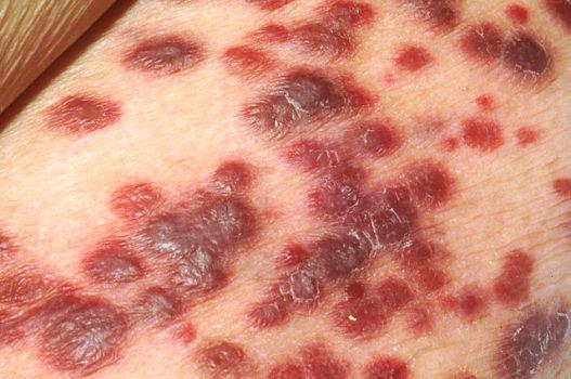 kaposi's sarcoma lesions skin red