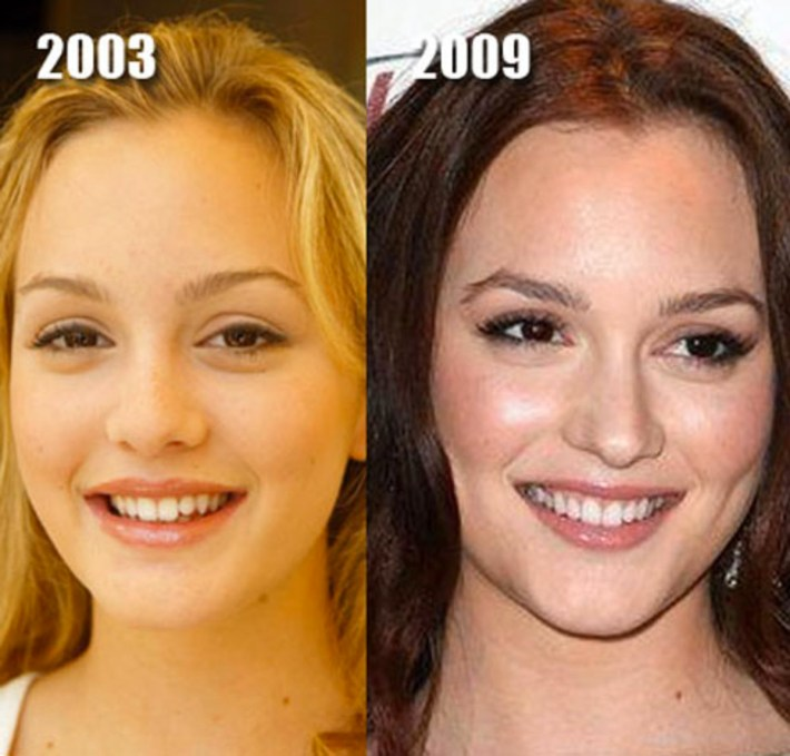 these celebs are examples of good plastic surgery - the skincare edit