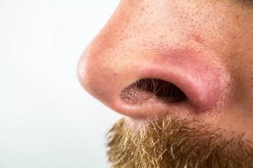 sebaceous filaments on a nose